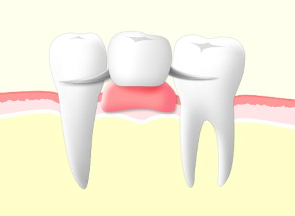 治療法比較部分入れ歯